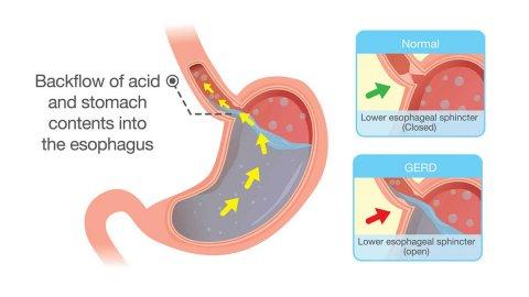 Gastroesophageal Reflux Disease (GERD)