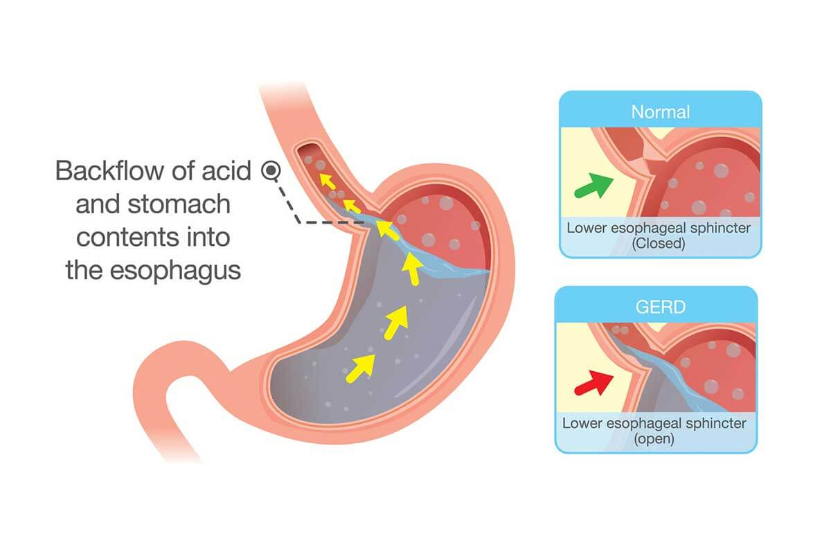 What is GERD? Gastroesophageal reflux disease (GERD) is the chronic occurrence of acid reflux. Heartburn is the most common symptom of GERD and is caused by the irritation of refluxed acid in the esophagus.