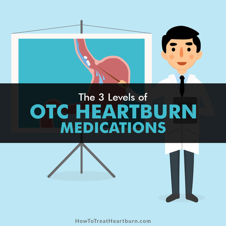 There are 3 levels of OTC medications for treating heartburn and acid reflux: antacids, histamine receptor blockers (H2 blockers), and Proton Pump Inhibitors (PPI's).